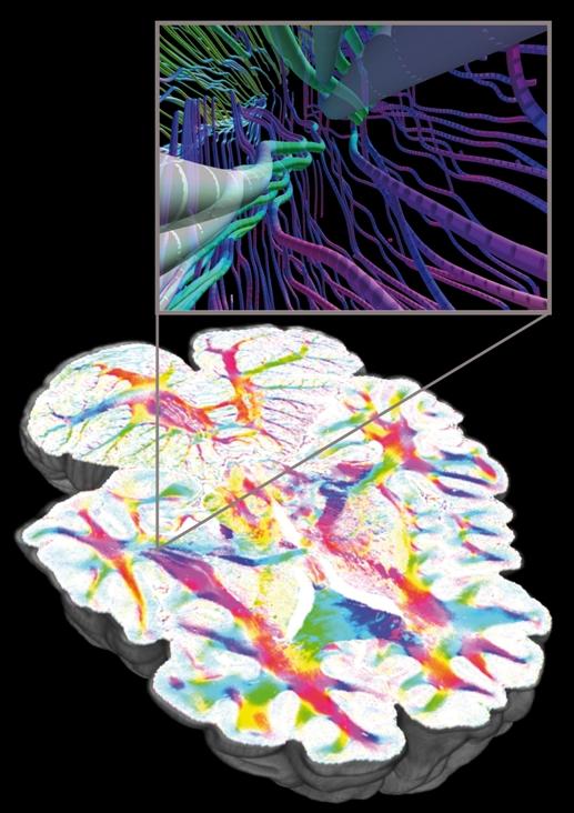 [Resim: 2013-01-14_Nerve_Fibers_Human.jpg]